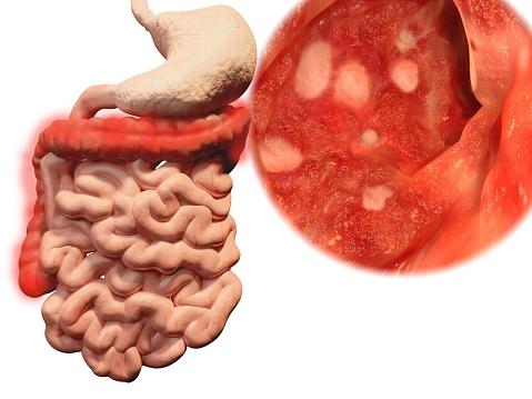 8 síntomas de la colitis nerviosa | salud180, Skeleton
