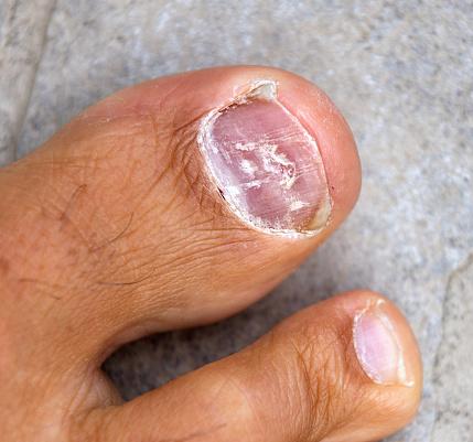 La crema del hongo de las uñas en los pies por