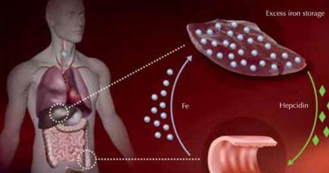 Hemacromatosis enfermedad que daña al hígado | Salud180