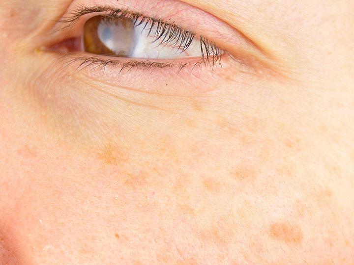 Mascarilla de soya contra las manchas del rostro