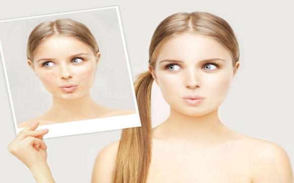 Hábitos que obstruyen tus poros (y que ni imaginabas)