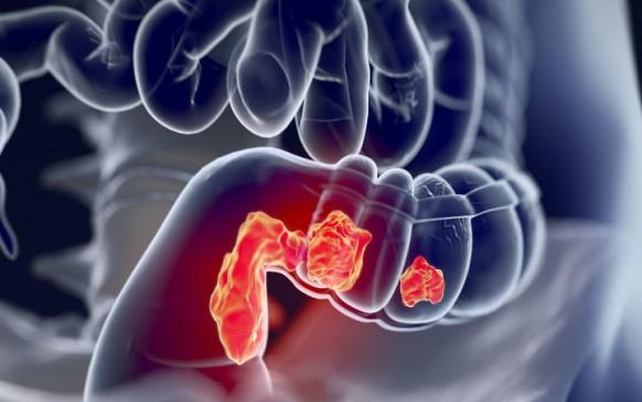 Primeros síntomas de cáncer de colon en mujeres