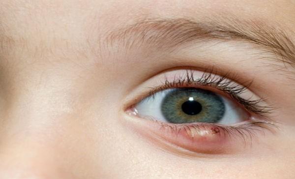 C mo quitar las perrillas de los ojos salud180 for Como se maquillan los ojos ahumados