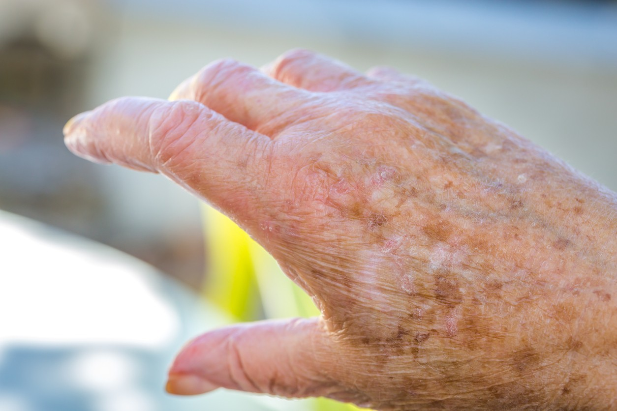 5 Remedios Caseros Para Eliminar Manchas Por La Edad