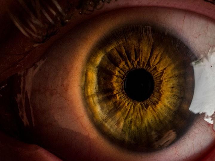 C mo quitar el color amarillo de los ojos salud180 for Como sacar el color aguamarina