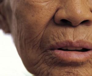 Arrugas pueden ayudar a prevenir fracturas en mujeres
