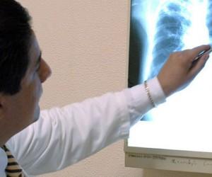 Recomendaciones para reducir efectos del asma