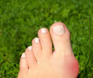 3 remedios caseros para calmar el dolor de los juanetes