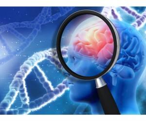 Si tienes problemas para dormir podrías desarrollar Alzheimer