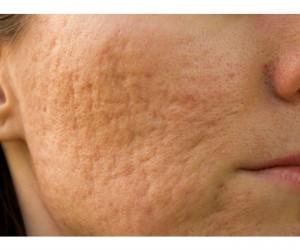 Remedio casero para las cicatrices de acné