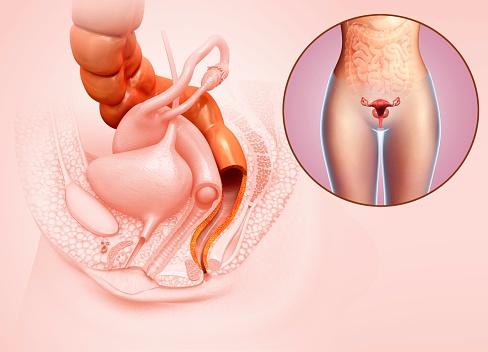 tipos de infecciones vaginales | Salud180