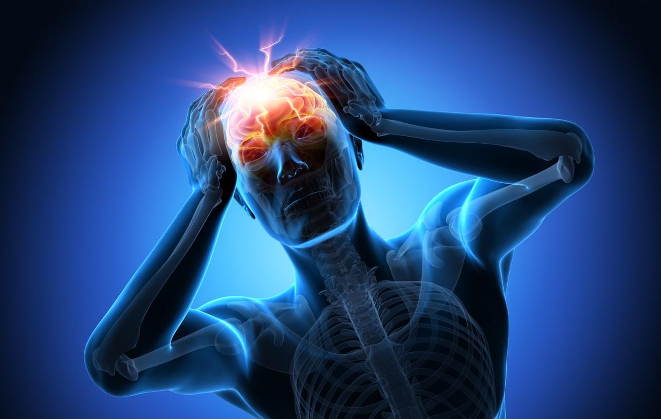 Noticias en Línea 4 tipos de dolor de cabeza asociados al..