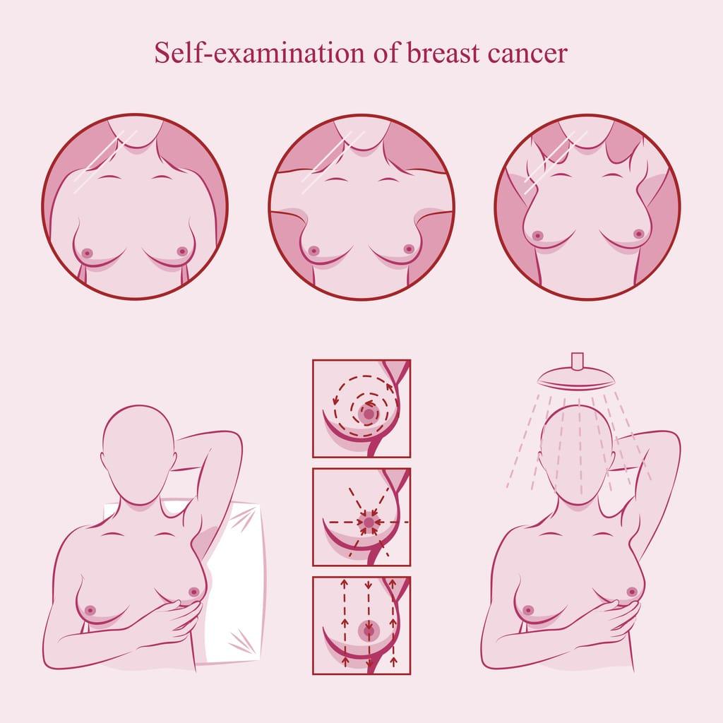 Póster ilustrativo de autoexploración de senos