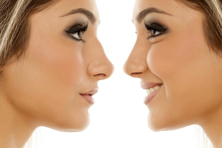 Acido hialurónico para la nariz