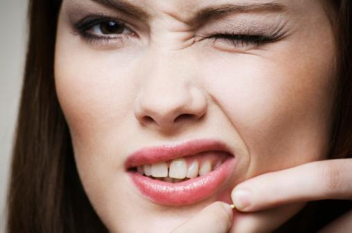 alimentos que no producen acne