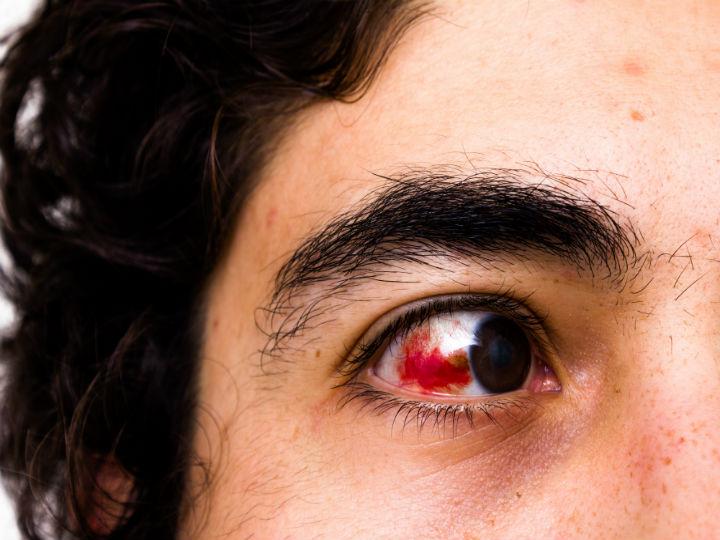 Acudir al quiropráctico, ¡podría ocasionar daños visuales!/