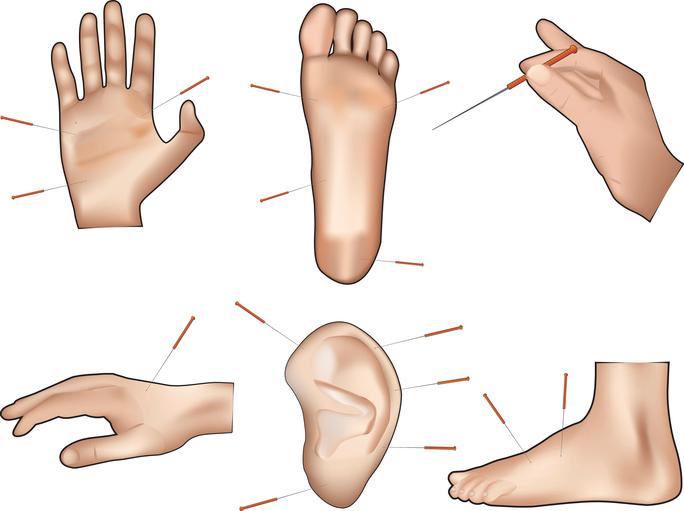 Puntos del cuerpo acupuntura para adelgazar