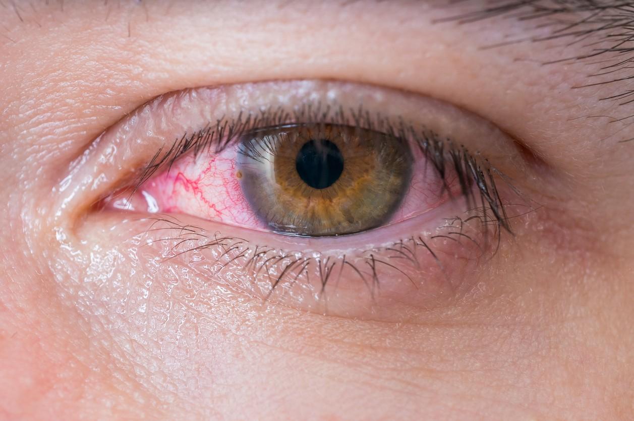 8.Irritación de ojos, nariz y garganta