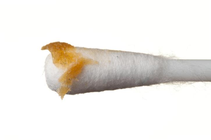 Así desinfecta y limpia tus audífonos de cerumen, bacterias y suciedad sin dañarlos