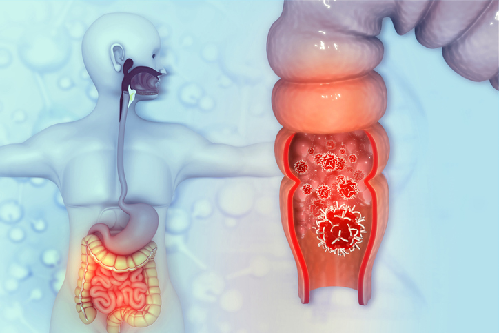 """Cáncer de colon 7 síntomas para detectar a este """"enemigo"""" no tan silencioso"""