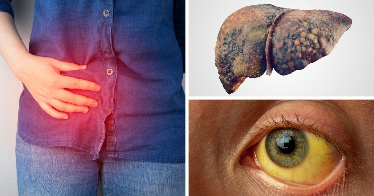 Cáncer de hígado: 8 señales que podrían revelar su presencia y NO DEBES IGNORAR