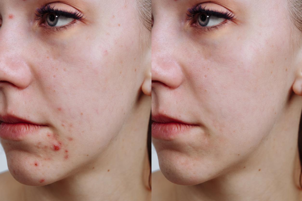Disminuye la aparición de granos y espinillas cuando dejas de usar maquillaje