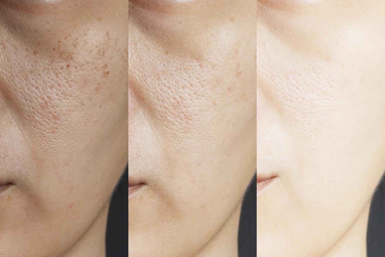 Se cierran los poros de la piel cuando no usas maquillaje