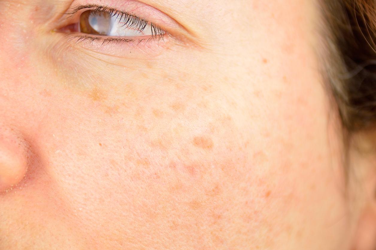 como-preparar-un-jabon-de-curcuma-y-jengibre-para-eliminar-manchas-acne-y-arrugas-de-tu-rostro-salud180
