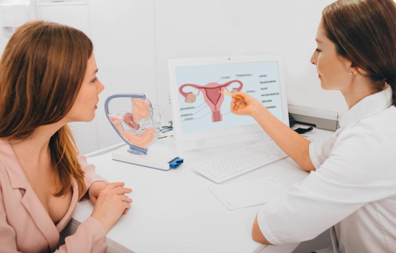 Ginecóloga explicándole a la mujer la salud de su útero en un esquema de éste