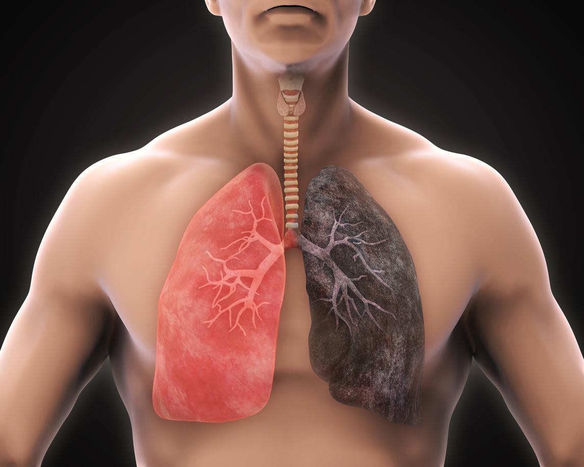 . Entre las consecuencias de fumar se encuentran: las enfermedades pulmonares, ataques cardiacos, diversos tipos de cáncer, EPOC, esterilidad, pérdida auditiva