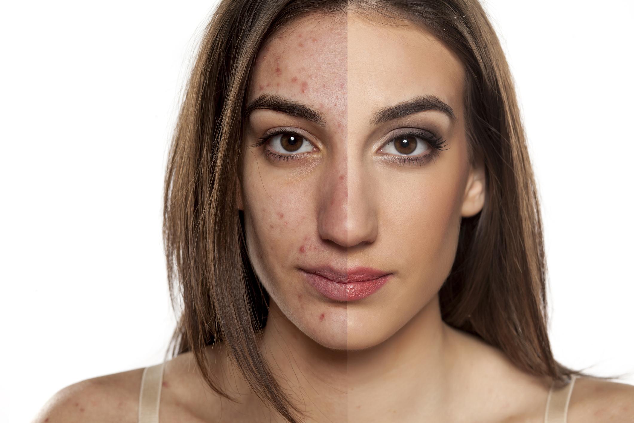 Cómo usar la manzanilla para la cara