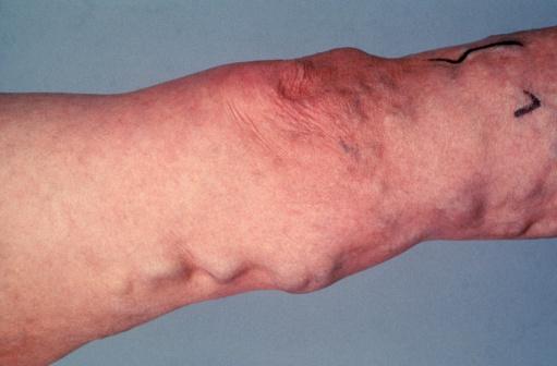 datos interesantes sobre las venas varicosas