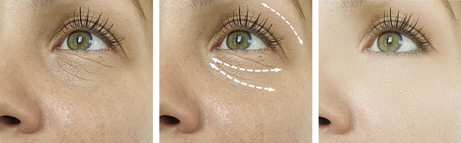 Crema casera con tres ingredientes para rejuvenecer el contorno de ojos