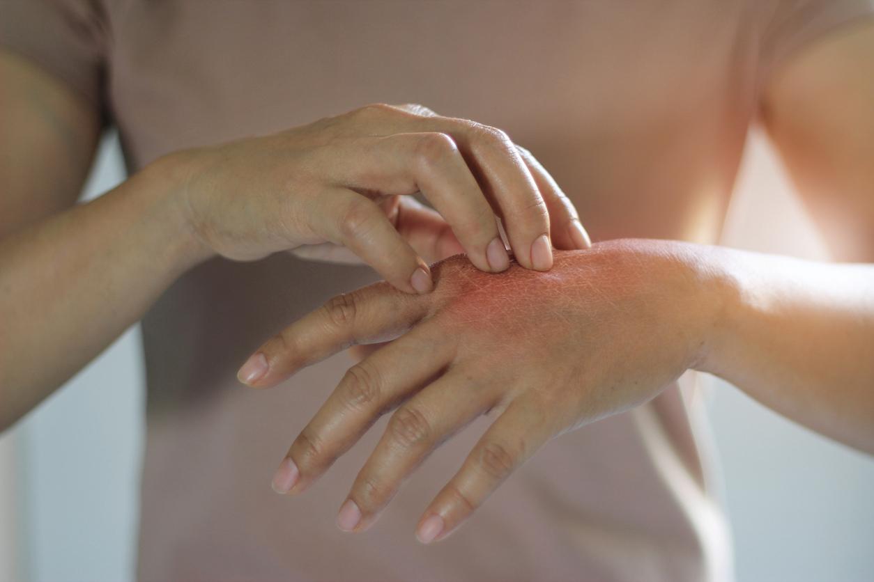 Por lo regular, el herpes zóster suele aparecer como una franja irritada a un costado del pecho o de la espalda