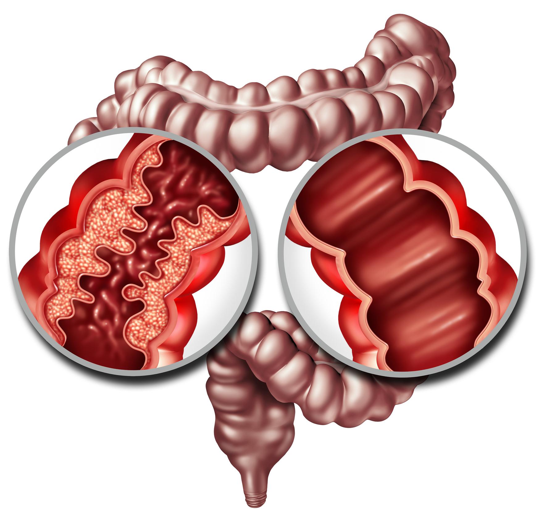Dieta recomendada para gastritis y colitis