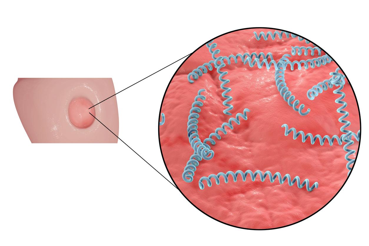 verrugas en el área de los genitales