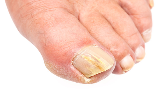 producto para los hongos delas uñas delos pies