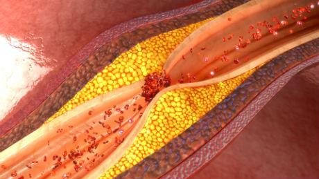 enfermedades_que_empeoran_con_el_frio_salud180_1.jpg