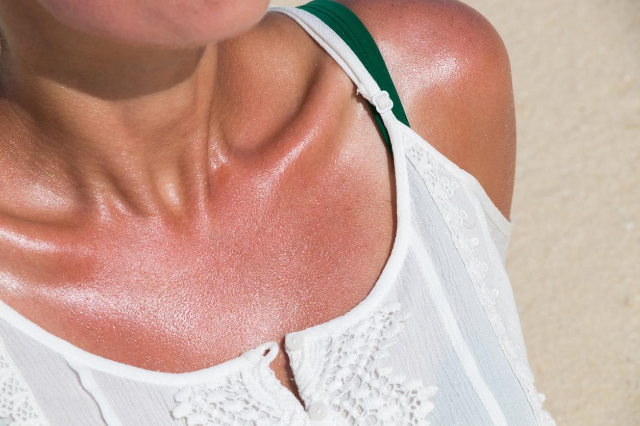 Con el uso constante de estos productos, tu piel puede volverse sensible a la luz del sol