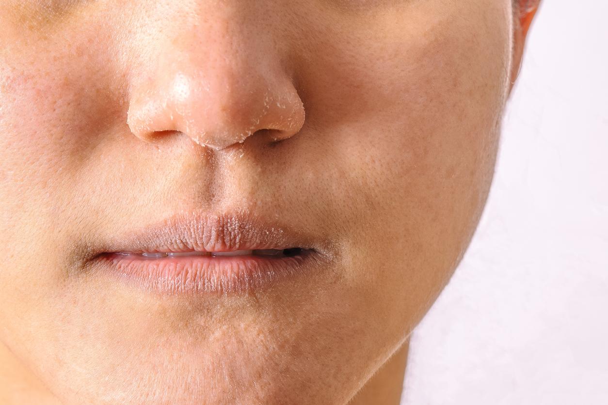 la piel seca aparecerá por la baja producción de colágeno, cuando este no es suficiente, la piel se vuelve más delgada, se seca y en algunas ocasiones sentimos que nos pica