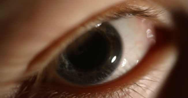 ¿Es reversible el daño ocular causado por la diabetes?