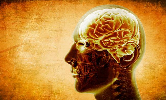 Aviso de infarto cerebral