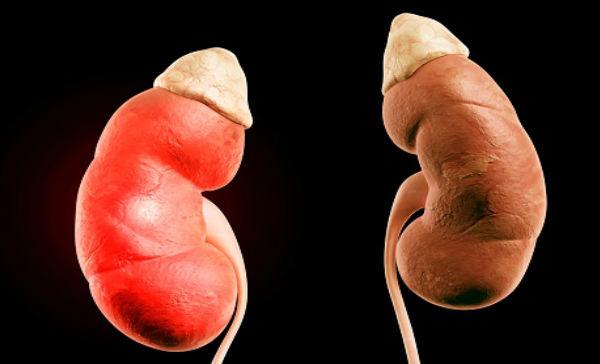 cura para la uretritis cuánto dura operar