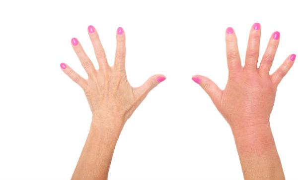 Frio la mano de el por de inflamacion los dedos