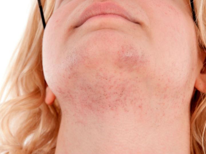 como quitarse los granitos de la cara en un dia