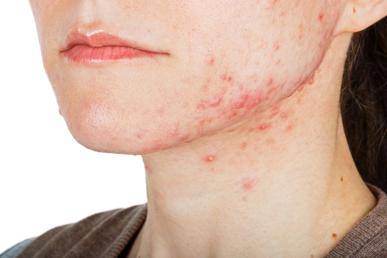 como eliminar granos internos de la cara