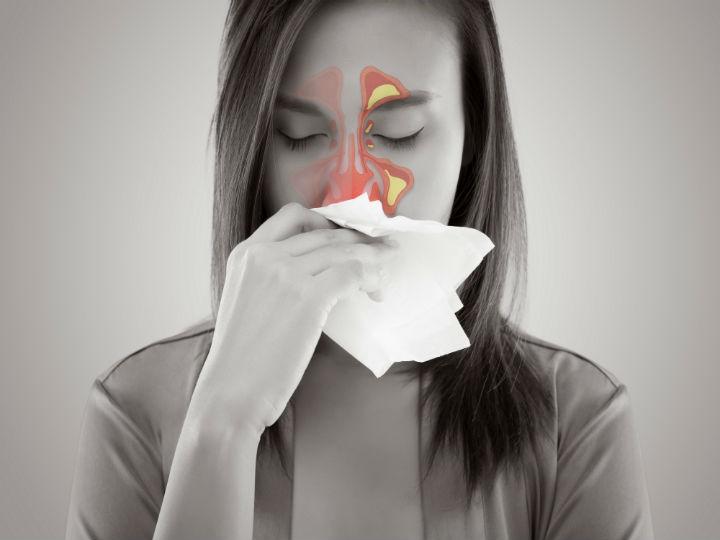 La sinusitis no atendida podría poner en riesgo tu vida