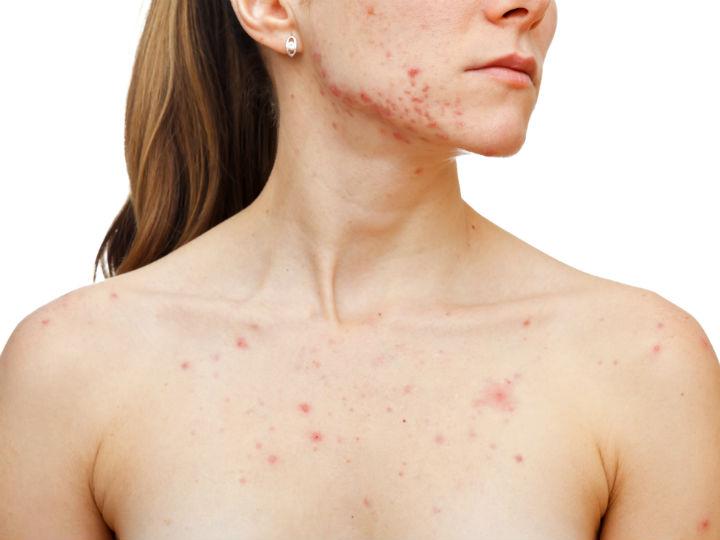 puntitos rojos en el cuello de la matriz