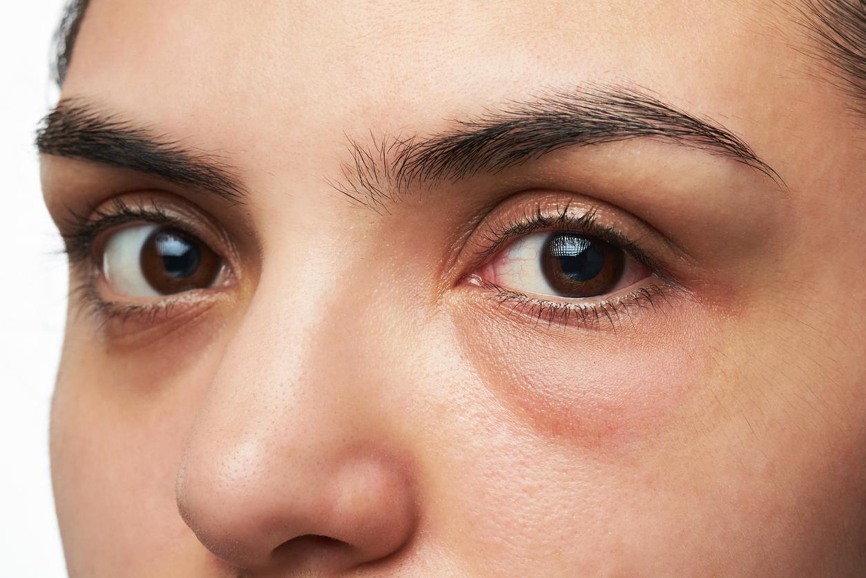 como evitar ojos hinchados por la manana