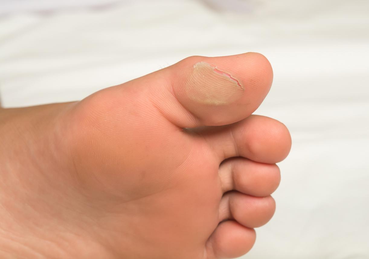 que son unas ampollas en los pies